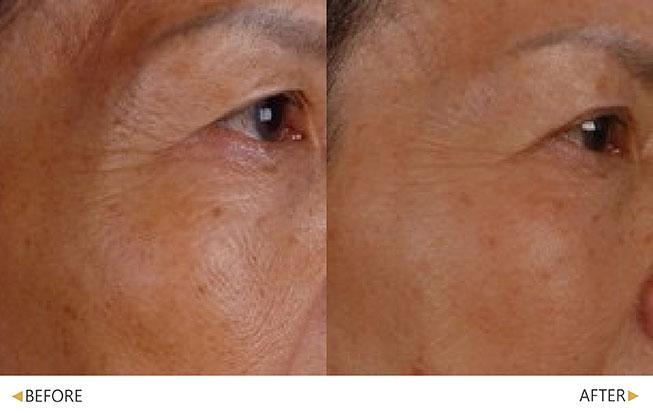 眼尾皺紋撫平了許多(原廠提供)。(實際效果因個案而異)