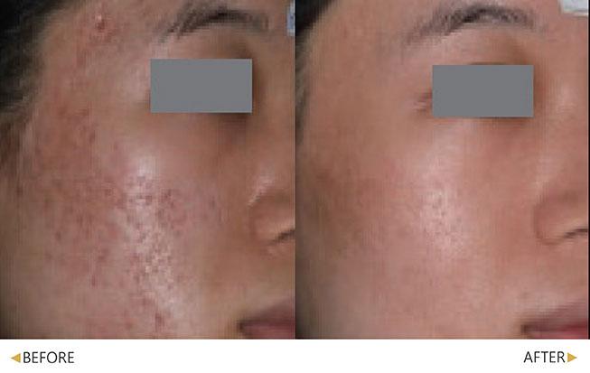 嚴重痘疤經過幾次UP雷射治療後皮膚變光滑了(原廠提供)。(實際效果因個案而異)