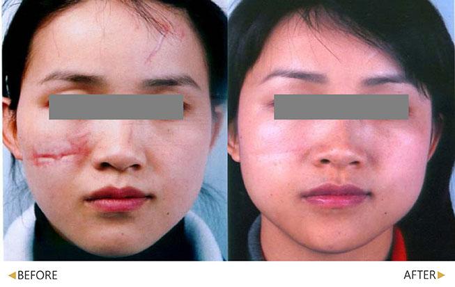 嚴重的疤痕經過幾次治療後不再那麼怵目驚心(原廠提供)。(實際效果因個案而異)