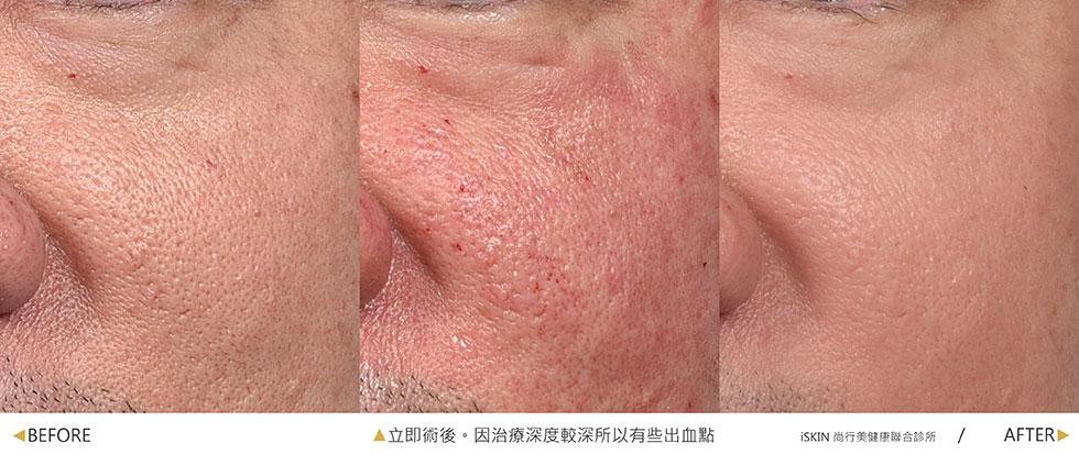此案例為毛孔粗大改善,由於治療深度較深,因此有些出血點,灼熱感約持續2~3小時,皮膚泛紅的部分改善天數因人而異,此案例術後照為1次治療術後半個月呈現效果。(實際效果因個案而異)