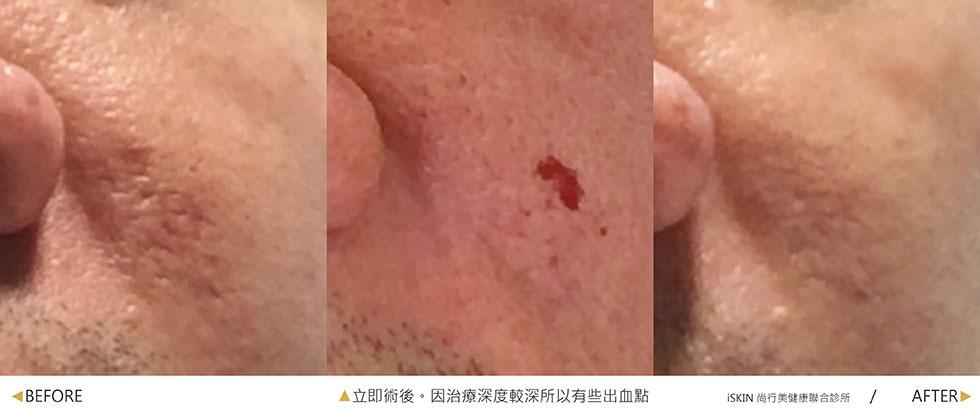 UP雷射:局部較深且凹凸不平的痘疤,經過up雷射的深度治療,破壞纖維化的疤痕組織,在一次治療後達到顯著的改善效果。(實際效果因個案而異)