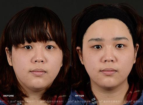 改善臉上色素暗沉、連膚色也明亮了(實際效果因個案而異)
