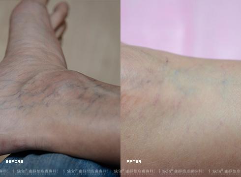 改善腳踝擴張的蜘蛛血管絲(實際效果因個案而異)