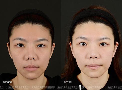 清除臉上雜毛與暗沉,成就白皙無暇(實際效果因個案而異)