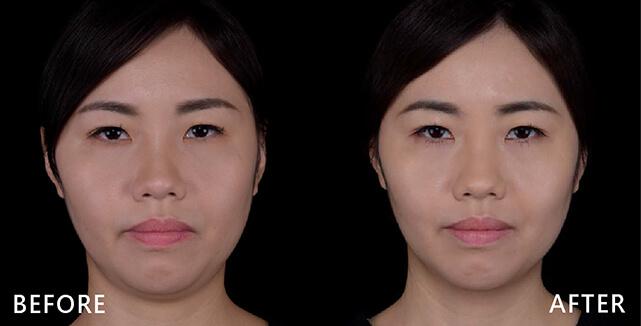 治療前,因為下半臉線條不夠修長,再加上雙下巴的問題,導致看起來年紀較大。(實際效果因個案而異)