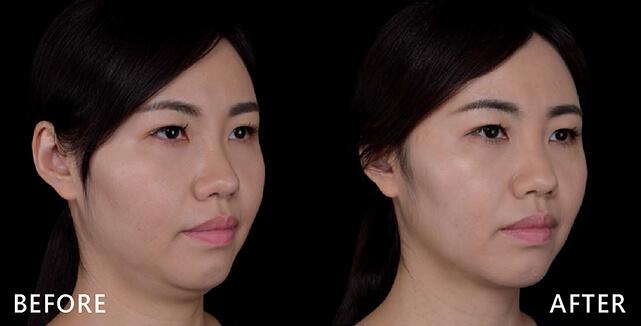 治療後,原本圓短的下巴也現形了,臉型比例及曲線也出來了,精神及臉型也更好看(實際效果因個案而異)