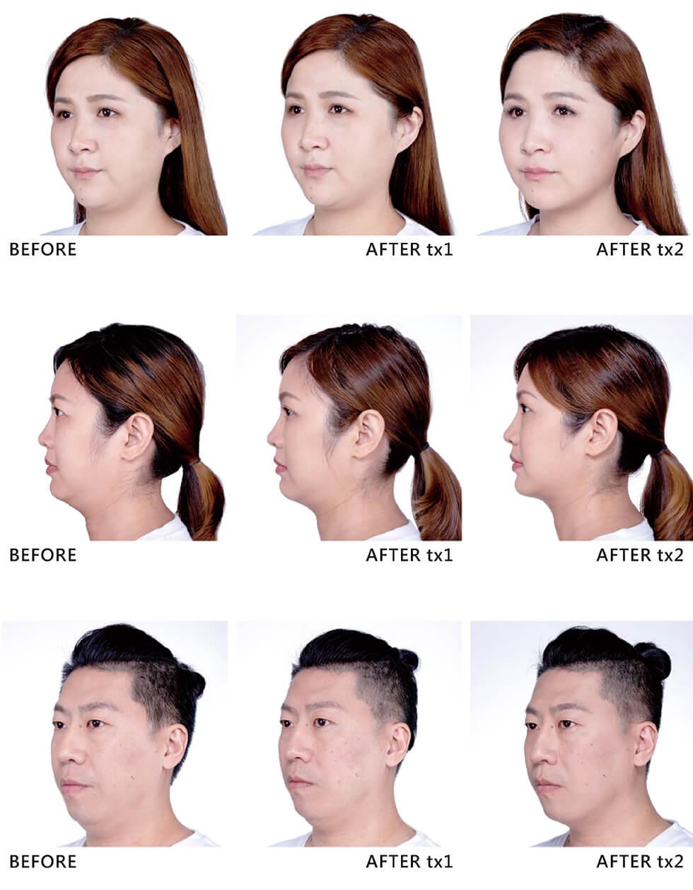 實際效果因人而異,建議先經由專業醫師諮詢,以上圖片案例由原廠提供。