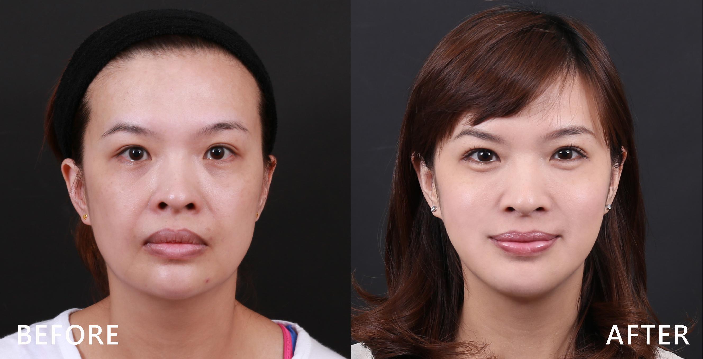 施打完肉毒桿菌素讓臉有被拉提的感覺。(本療程施打效果因人而異)