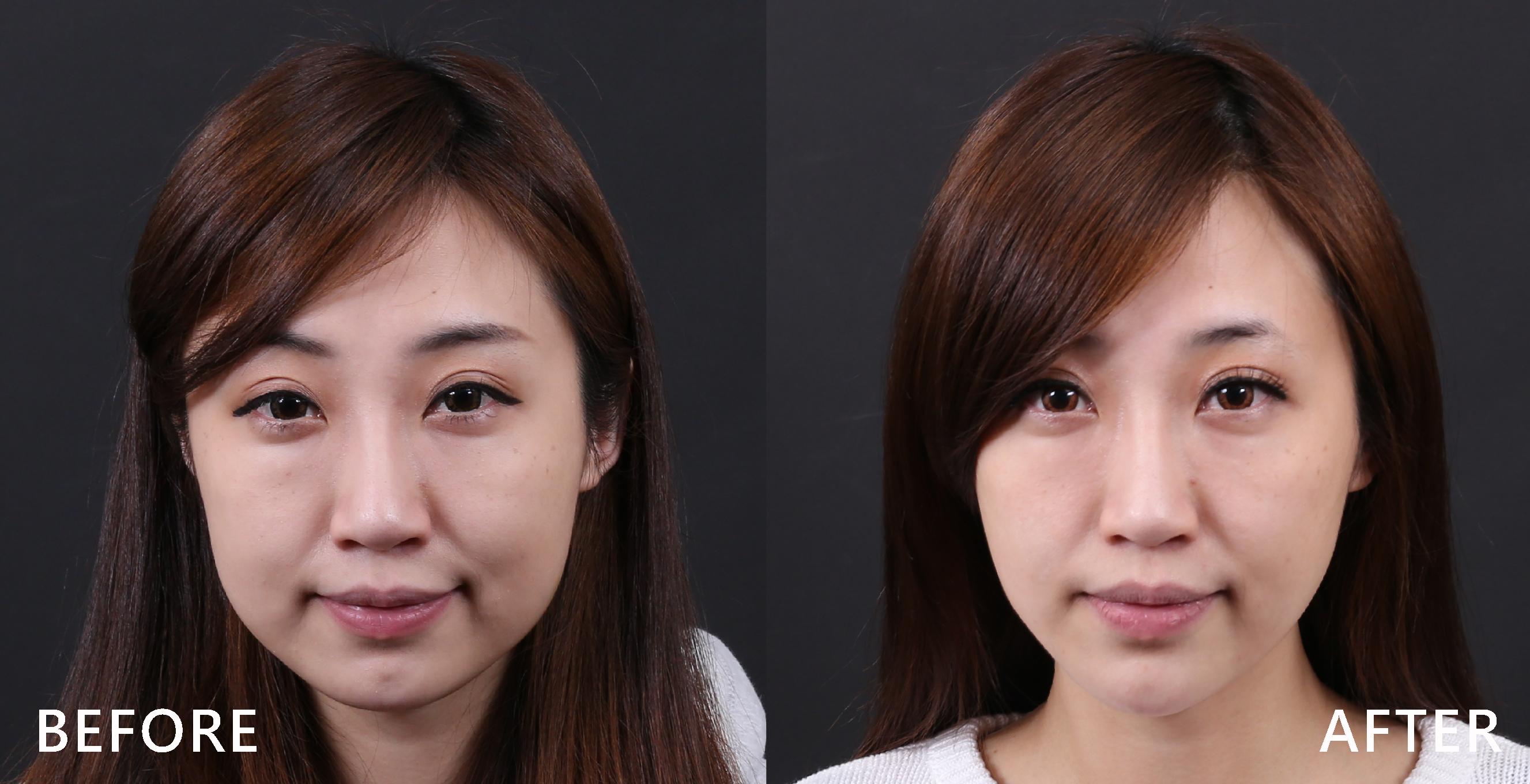 肉毒桿菌素讓下巴變尖,修飾臉型。(本療程施打效果因人而異)