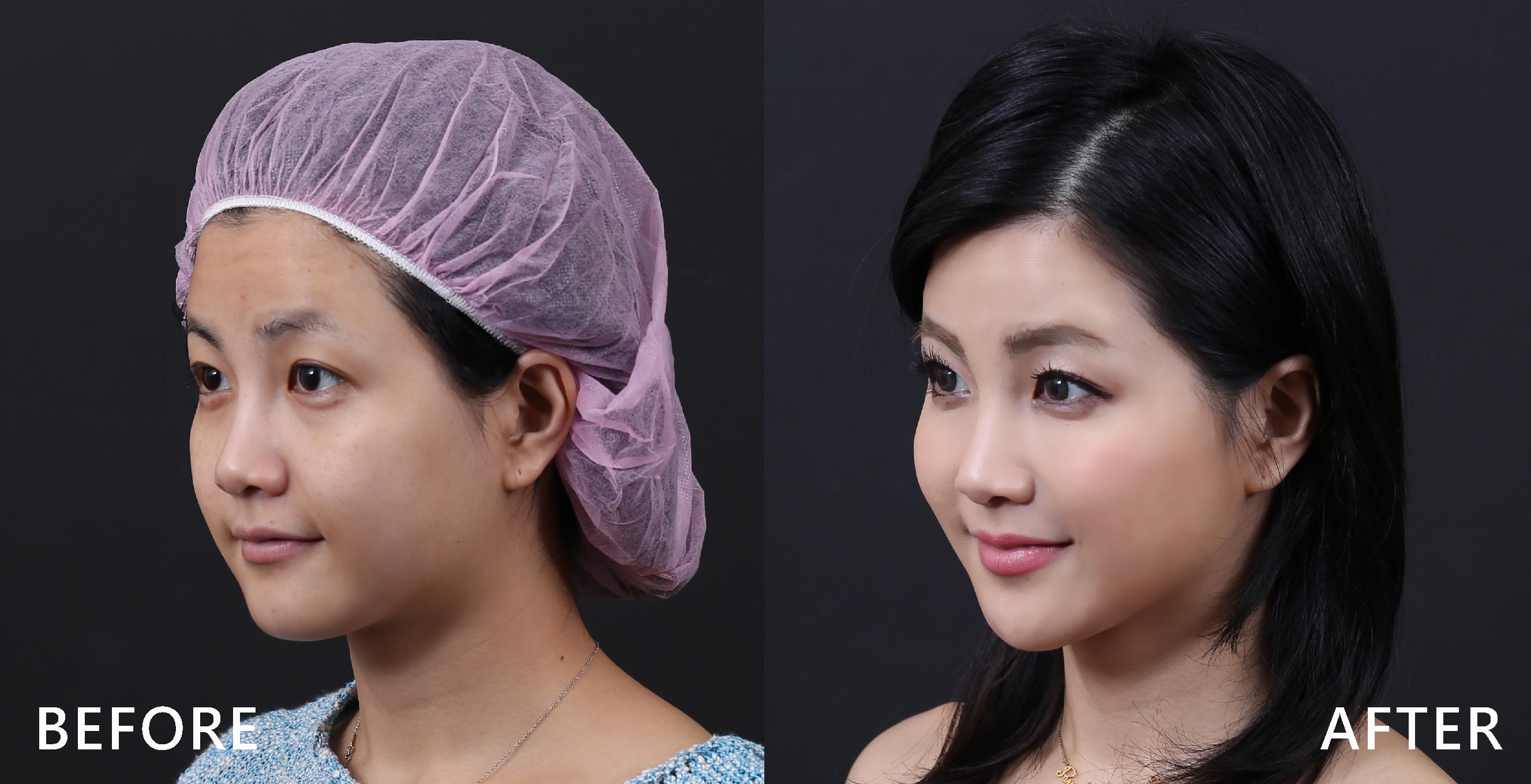施打完肉毒桿菌素修飾臉型,下巴出來了。(本療程施打效果因人而異)