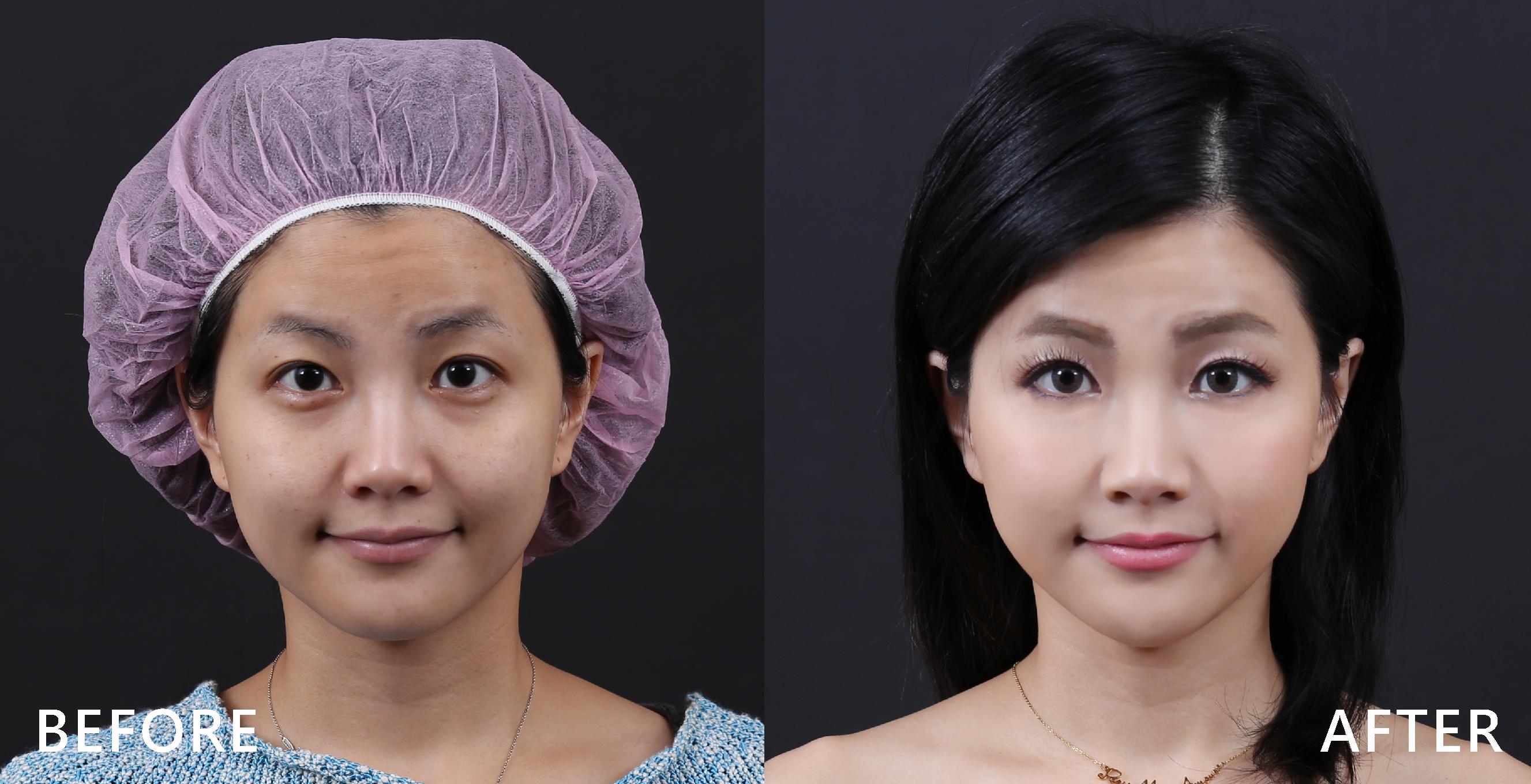 治療過度活躍的肌肉,造成皺紋的肌肉放鬆,臉變平滑年輕了。(本療程施打效果因人而異)