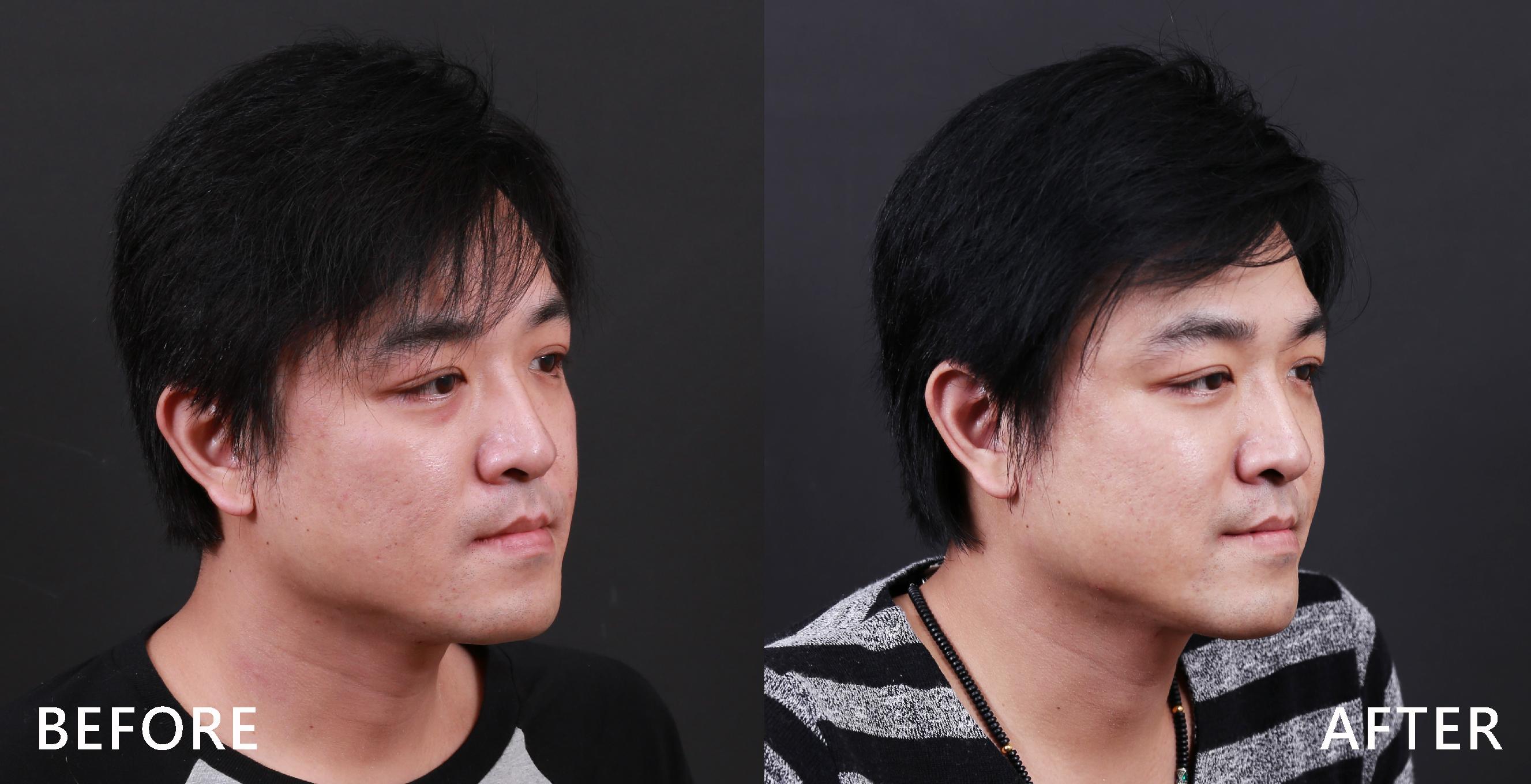 治療雙下巴,修飾臉週線條。(本療程施打效果因人而異)