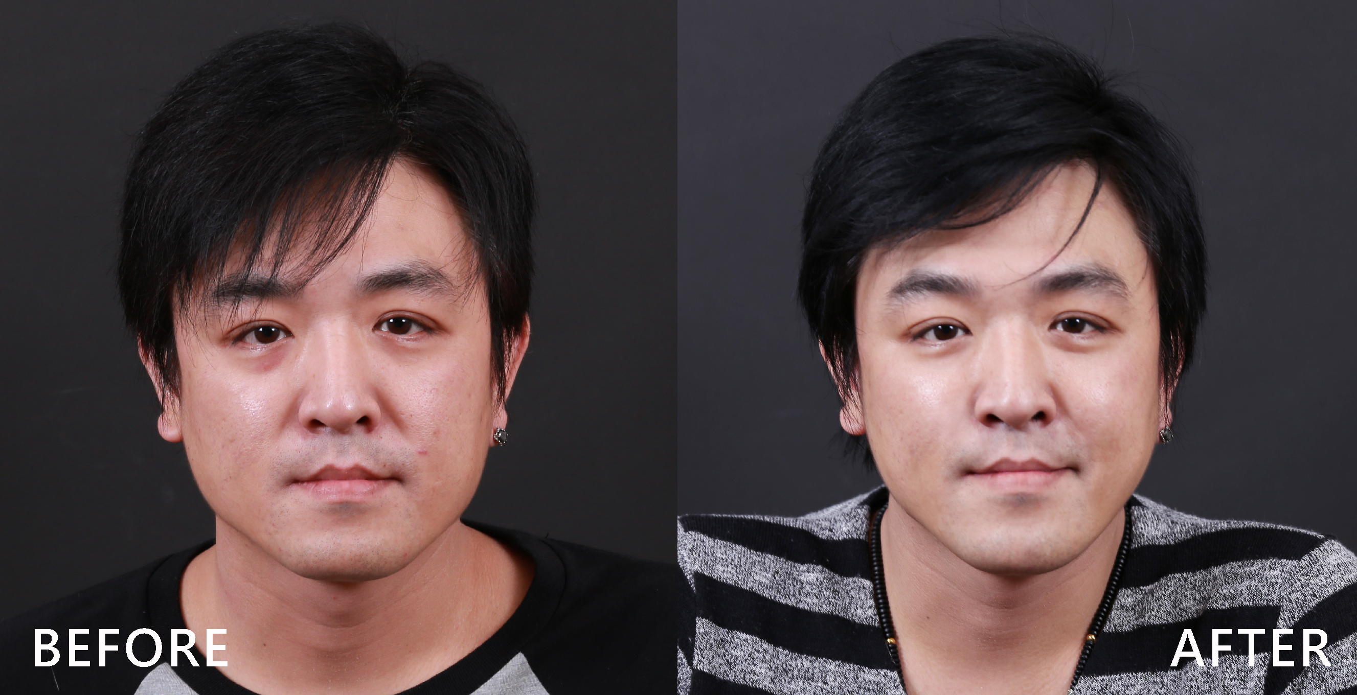 除皺瘦臉針可改善國字臉。(本療程施打效果因人而異)
