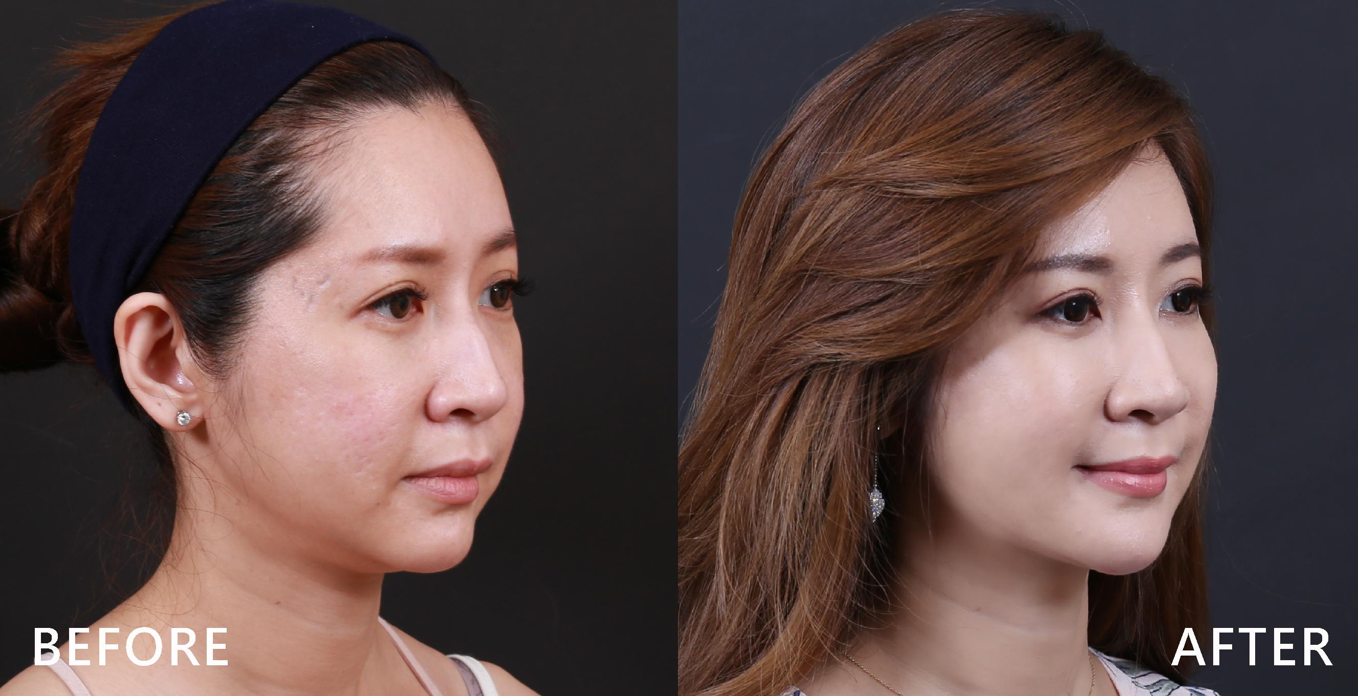 改善下顎線條後,雙下巴消失了。(本療程施打效果因人而異)