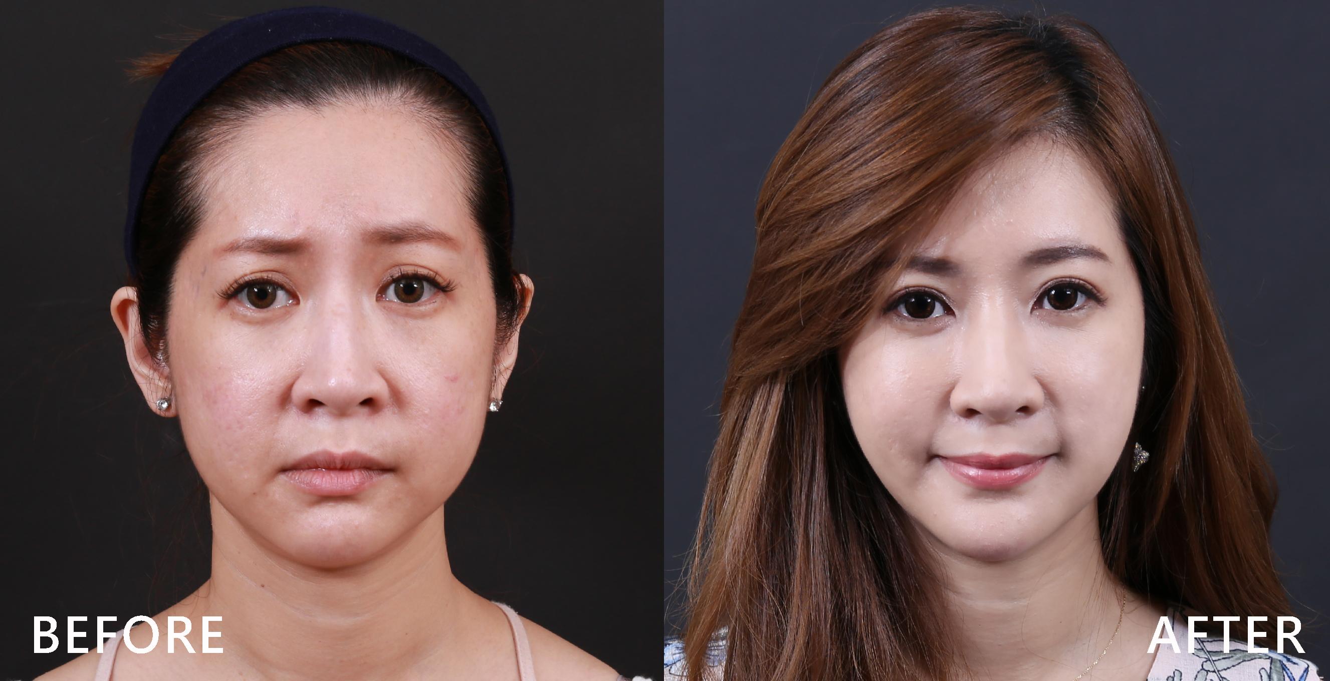 在肉毒桿菌的作用下,使臉部過度收縮的肌肉可以鬆弛,修飾臉型。(本療程施打效果因人而異)