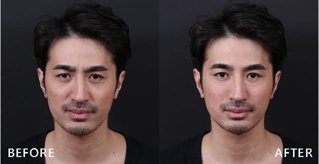 肉毒桿菌素是臉部動態皺紋的剋星,放鬆眉心肌肉後臉變得平滑。(本療程施打效果因人而異)