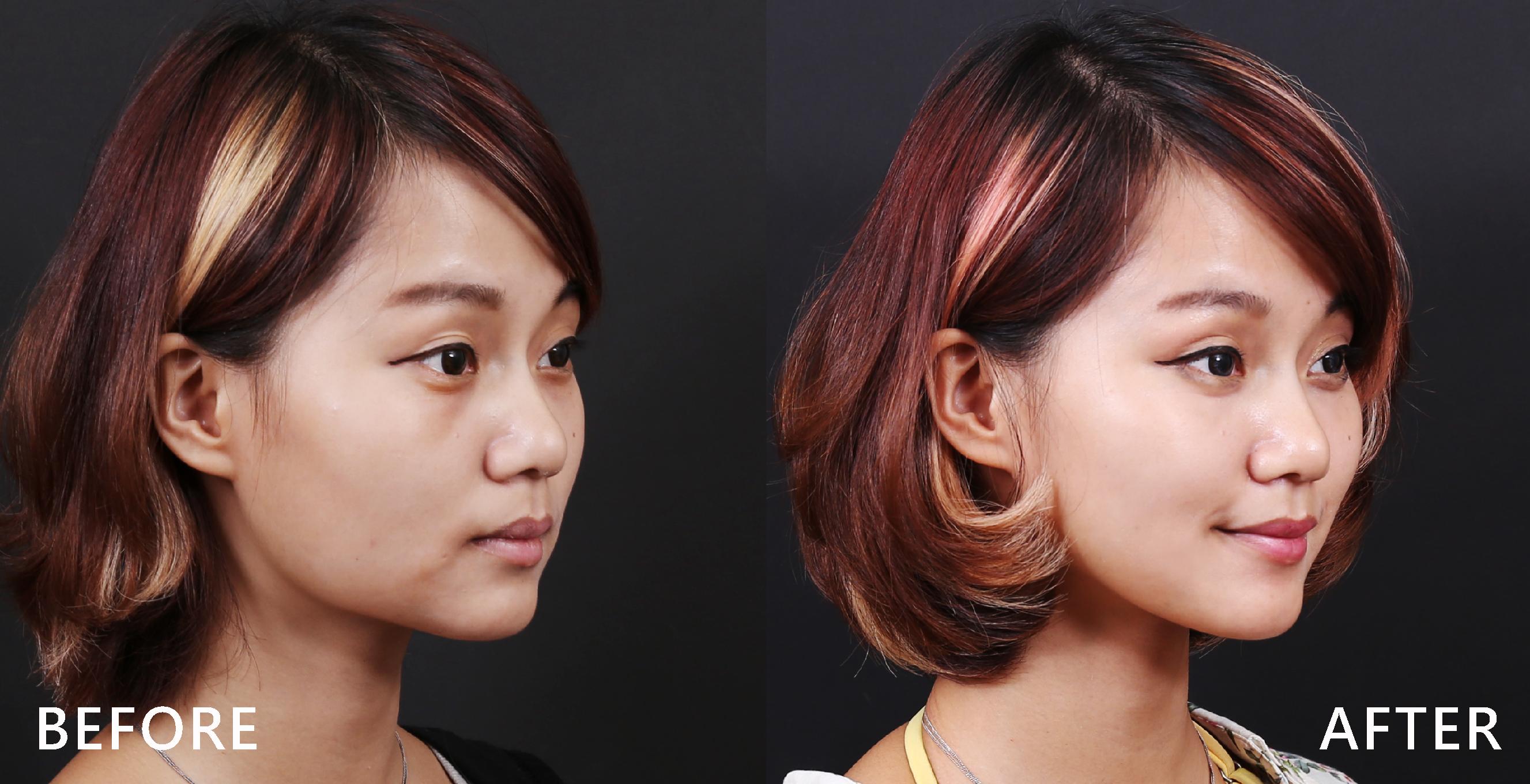 除皺瘦臉針可修飾嘴邊肉,改善鬆垮大臉。(本療程施打效果因人而異)