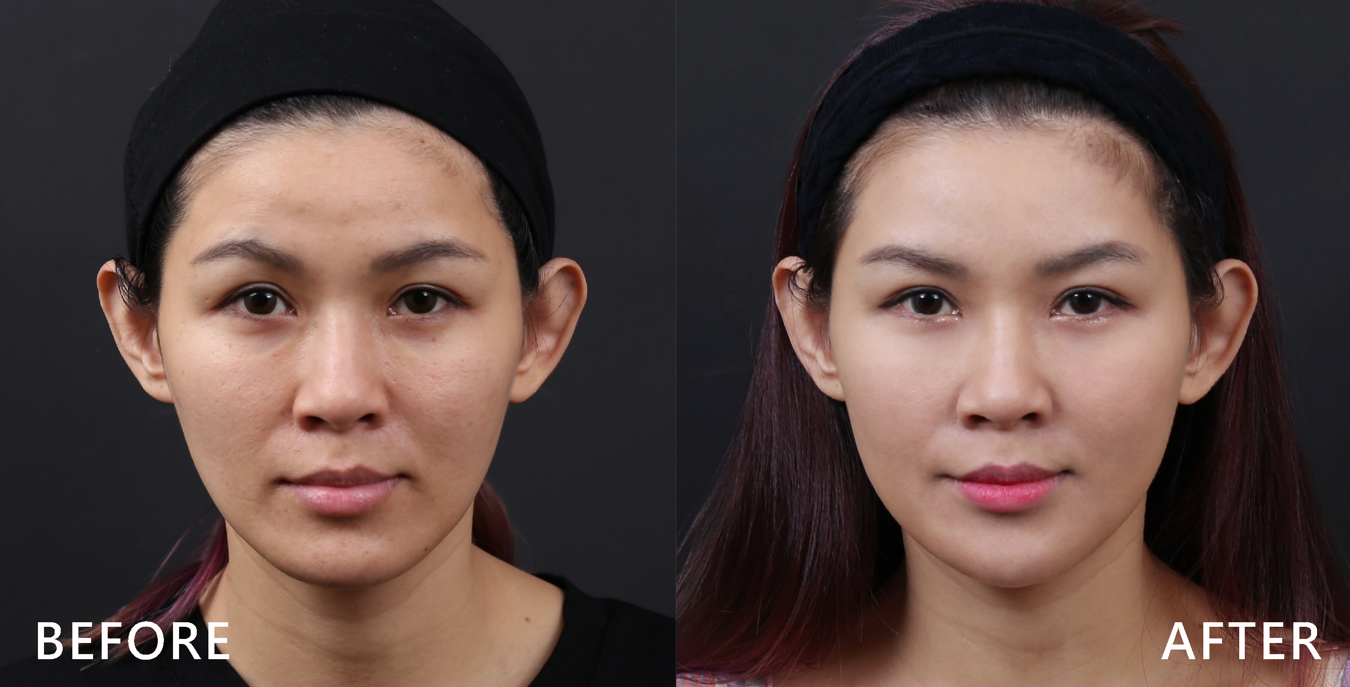 施打完肉毒桿菌素後,修飾臉型,下巴出來了。(本療程施打效果因人而異)