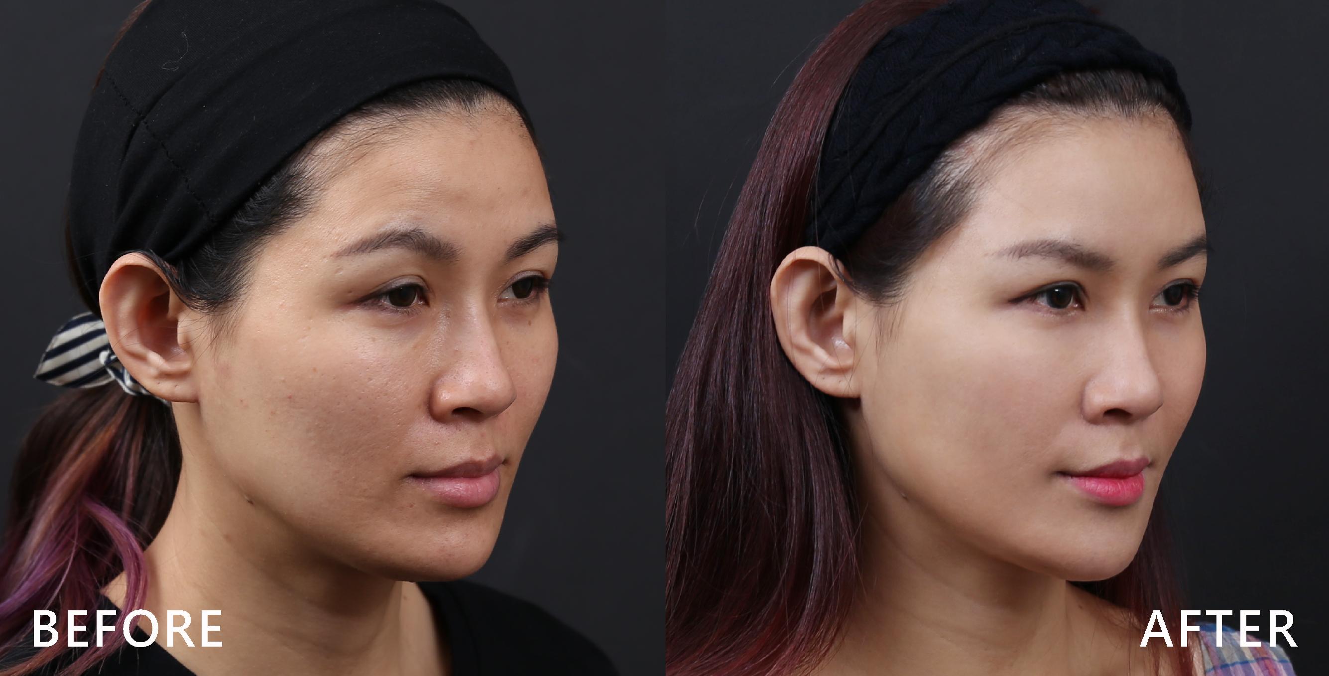 施打完肉毒桿菌素後,下巴輪廓修飾了。(本療程施打效果因人而異)