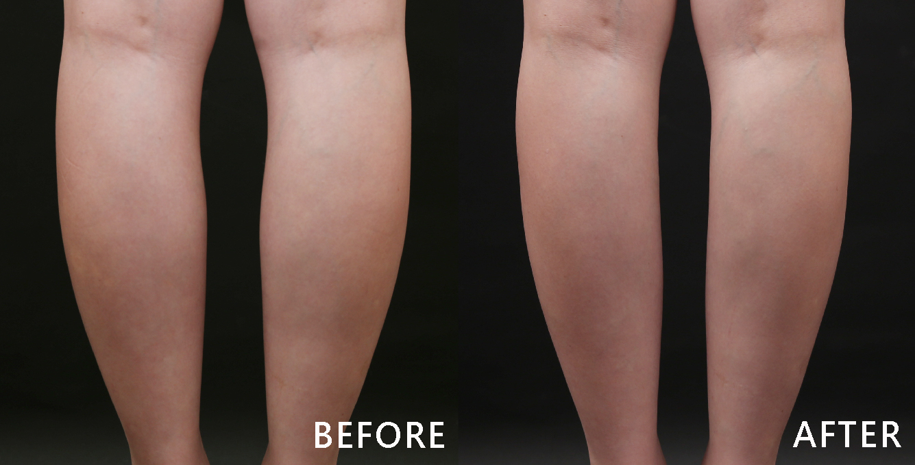 小腿肌是許多女性避之唯恐不及的,尤其衣穿上短裙短褲根本打回原形。透過除皺瘦臉針注射小腿肌後,小腿肚明顯消下去了,同時小腿線條更筆直自然。(本療程施打效果因人而異)