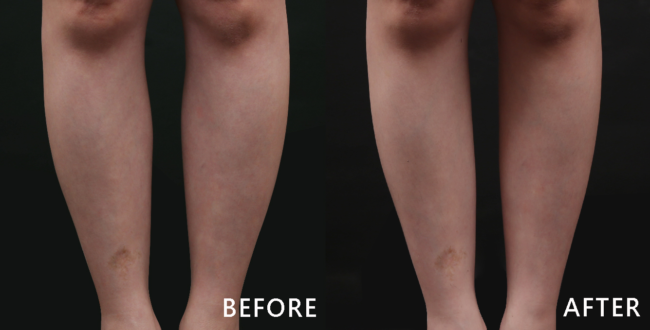 最明顯的是小腿縫變寬了,原本小腿內側肌肉的形狀在透過除皺瘦臉針的修飾後,變得又直又順(本療程施打效果因人而異)