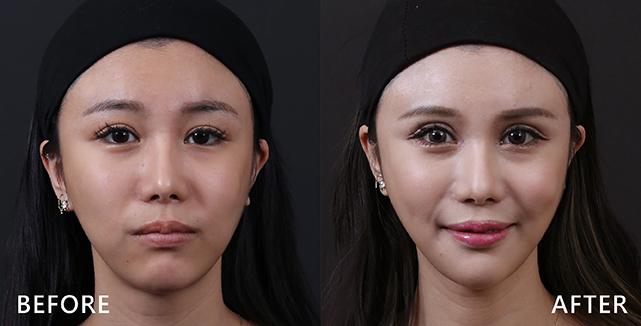 施打完肉毒桿菌素後讓臉部線條更立體。(本療程施打效果因人而異)