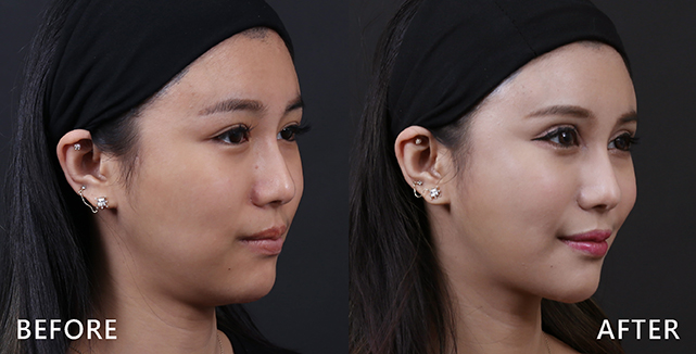 施打完肉毒桿菌素後感覺臉被拉提了,臉變小了。(本療程施打效果因人而異)