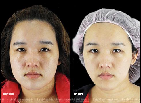 (右)腮幫子治療過後消了下去     本療程施打效果因人而異