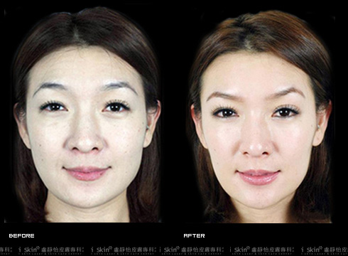 (右)抬頭紋不見了!     本療程施打效果因人而異