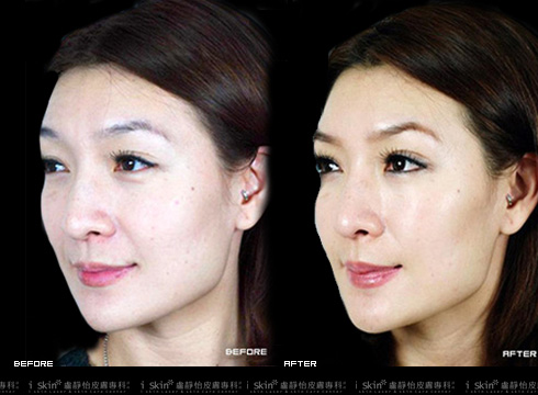 (右)臉上的細紋皺紋都不見了     本療程施打效果因人而異