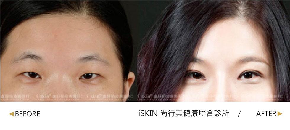 實際效果因個案而異,從細小單眼皮變成時尚迷人的雙眼皮