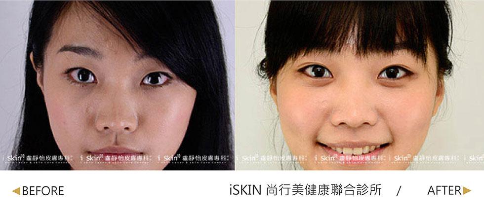 實際效果因個案而異,從看起來臉很臭單眼皮,化身為眼睛柔和、含情脈脈的雙眼皮女孩