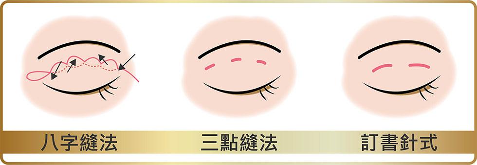 雙眼皮縫法:八字縫法、三點縫法、訂書針式縫法,客製化打造手術效果。