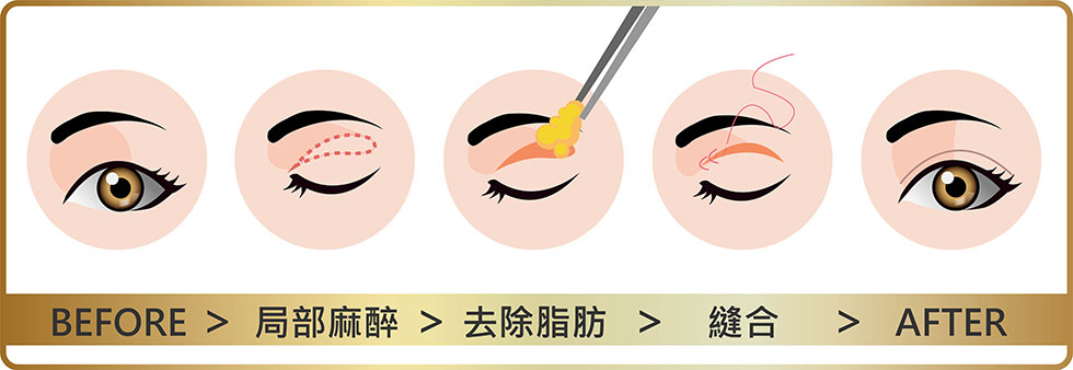 縫雙眼皮傷口小恢復快,割雙眼皮傷口較大但維持較久,醫師會視個人狀況而給予建議。