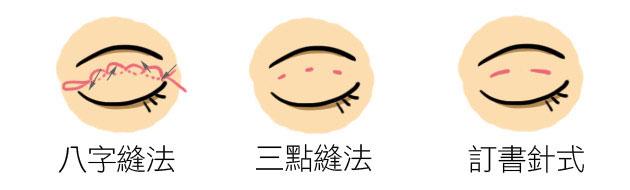 ▲雙眼皮縫法:八字縫法、三點縫法,以及訂書針式的縫法。其中不見得哪種縫法最好,重點還是客人希望得到的效果。
