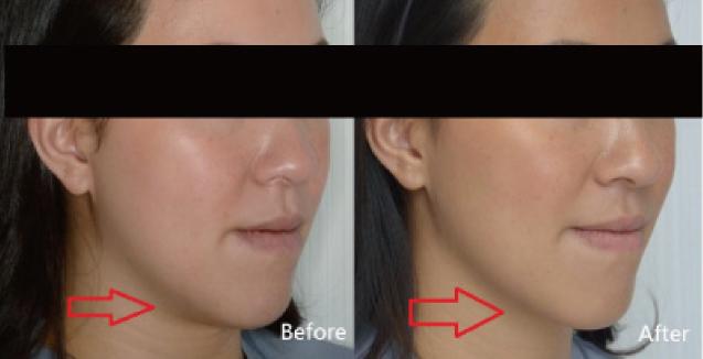 音波拉皮下顎線拉提(實際效果因個案而異)