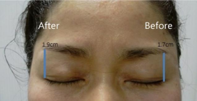 音波拉皮眼周拉提(右邊為術前左邊為術後)(實際效果因個案而異)