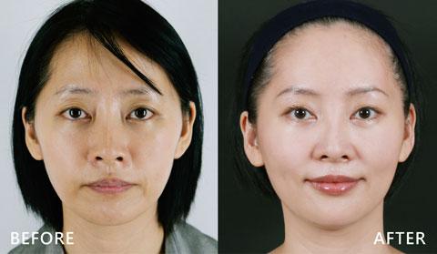 中臉施打藉由玻尿酸拉提 (效果因個案而異)