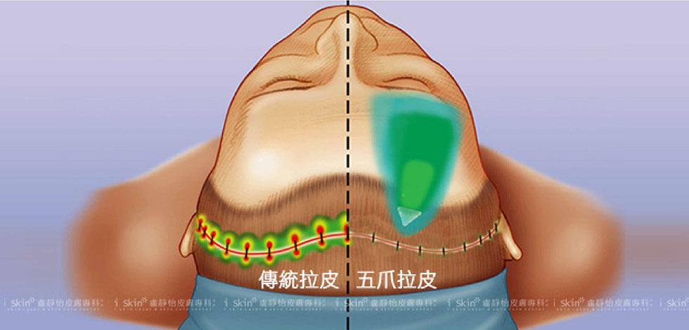 左為傳統的拉皮方式,需沿著髮髻線平行開口、縫合,傷口範圍大,且縫合點的壓力強; 右以五爪鉤進行垂直方向的拉提,藉鉤爪把額頭或中臉的老化贅肉提起,單一切口僅2~3公分,固定力道穩定、壓力分布平均。