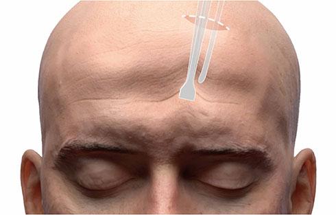 內視鏡拉皮手術,傷口約二到三公分(右圖)