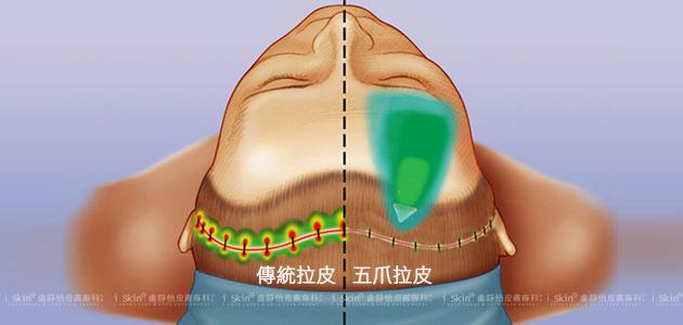 左為傳統的拉皮方式,需沿著髮髻線平行開口、縫合,傷口範圍大,且縫合點的壓力強;右以五爪鉤進行垂直方向的拉提,藉鉤爪把額頭或中臉的老化贅肉提起,單一切口僅2~3公分,固定力道穩定、壓力分布平均。