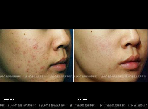 使用在去除色素沉澱痘疤的案例(實際效果因個案而異)