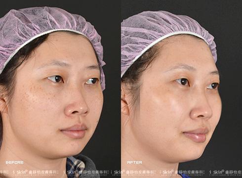 去除表面雀斑後膚質也更加光滑明亮(實際效果因個案而異)