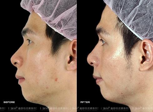 (右)臉頰平滑光亮了許多(實際效果因個案而異)