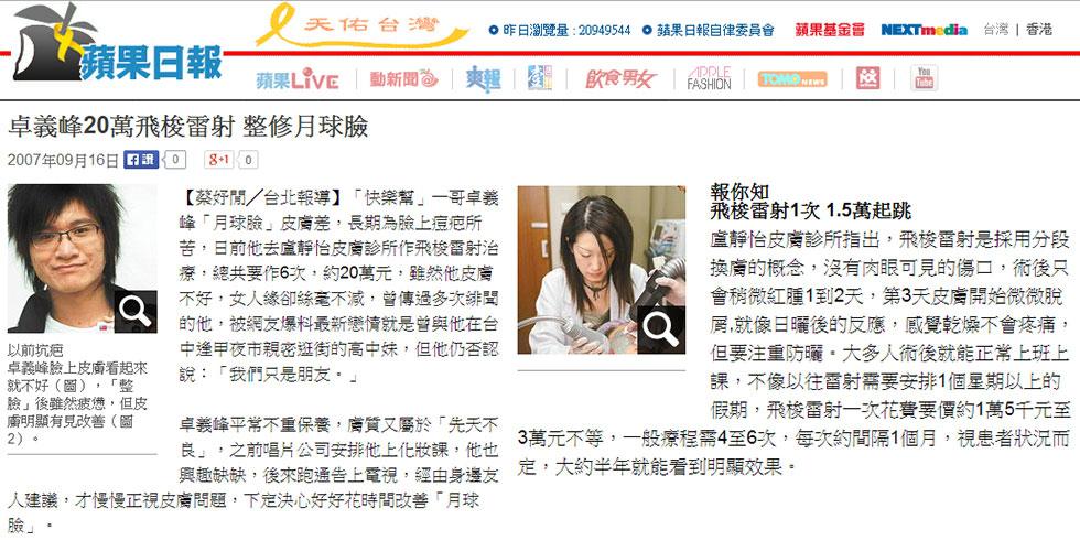 蘋果日報報導關於【飛梭雷射】幫助卓義峰改善痘疤
