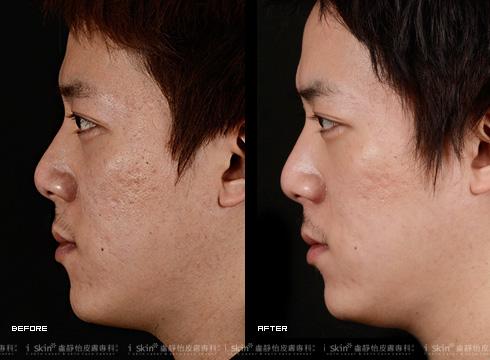 (右)痘疤明顯變少許多(實際效果因個案而異)