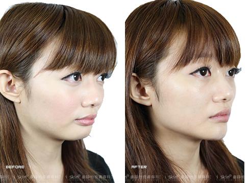 (右)施打下巴,不再是平面臉孔     實際施打效果因個案而異