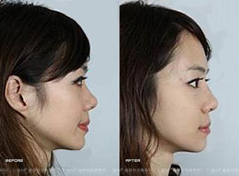 右)施打山根,鼻子不再扁塌     實際施打效果因個案而異