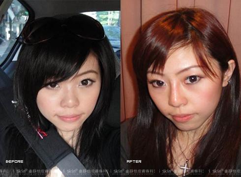 (右)治療後不再看起來氣色不佳     實際施打效果因個案而異