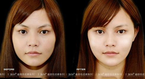 (右)下巴注射後鵝蛋臉現形     實際施打效果因個案而異